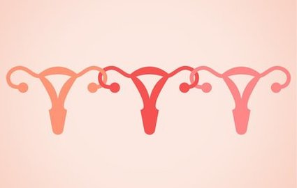 OBGYN in Denton - Ovarian Cysts